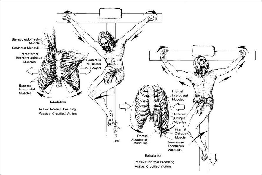 crucifixion 6